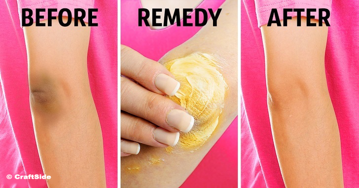 10 Natural Tricks to Remove Dark Knees and Elbows