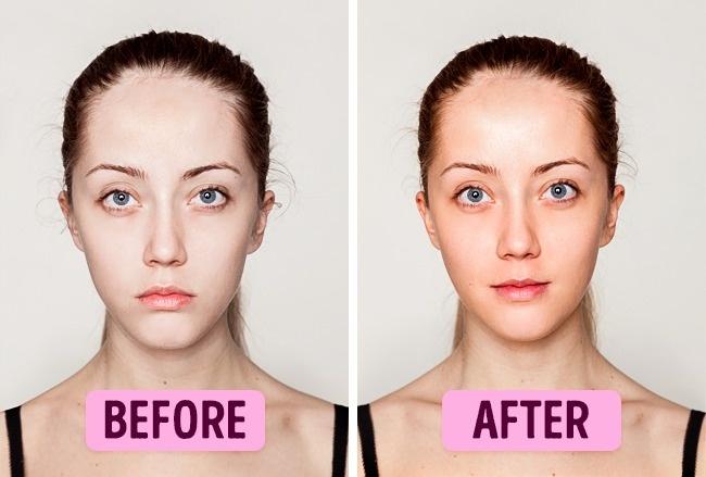 Mediocre facial skin