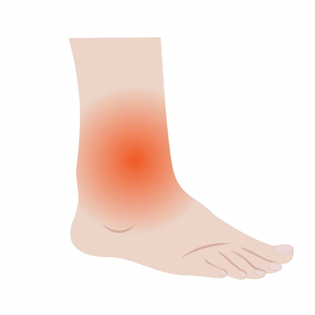 Swelling in ankles, feet and hands Kidney Symptoms