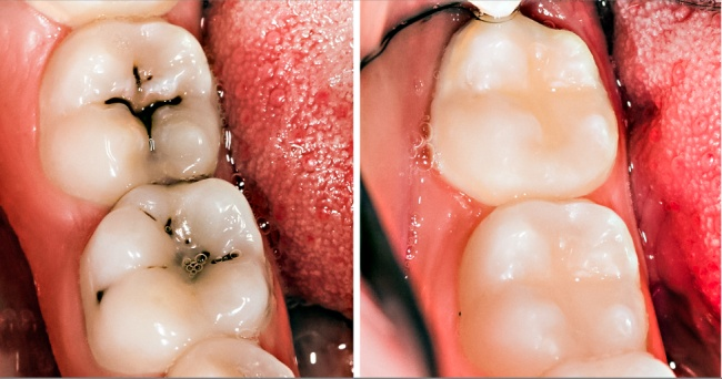 8 Tips to Naturally Reverse Cavities and Heal Tooth Decay