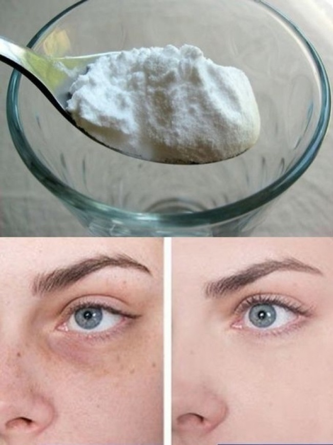 Use baking soda to reduce dark circles and bags under the eyes