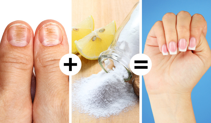 Baking soda and lemon to remove nail stains.