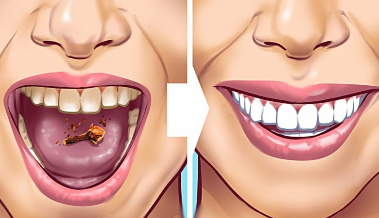 10 Home Remedies to Remove Tartar Stains From Your Teeth