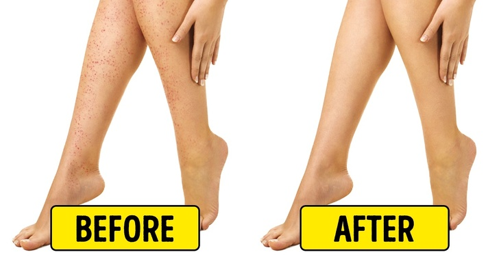 10 Natural Home Remedies Work Best To Irritation After Shaving