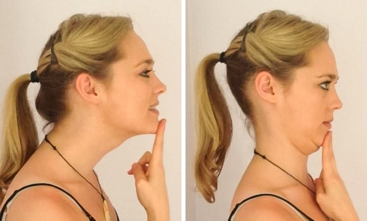 how to get rid of neck pain from sleeping