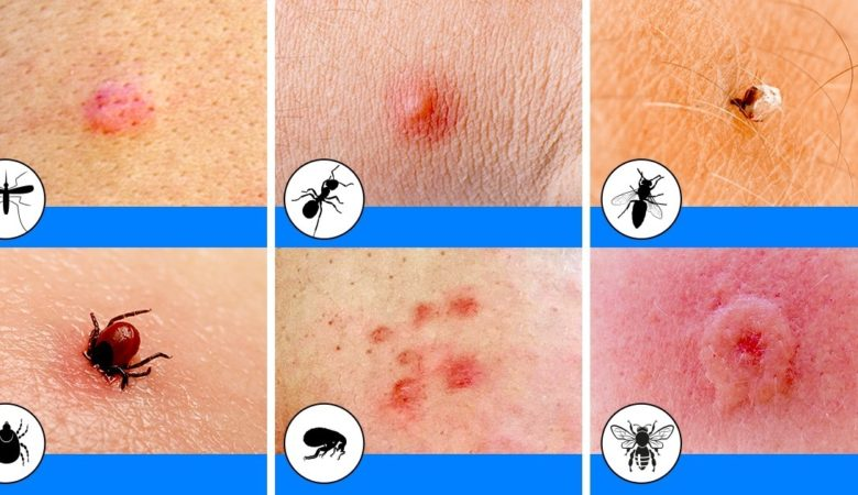 What Kind of Bug Bite Me? How to Identify Common Bug Bites