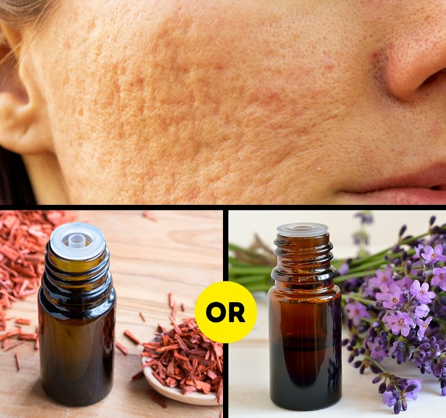 how to remove scars of pimples home remedies