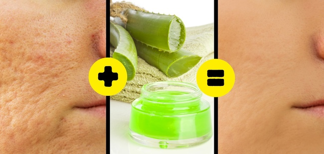 what gets rid of acne scars home remedies