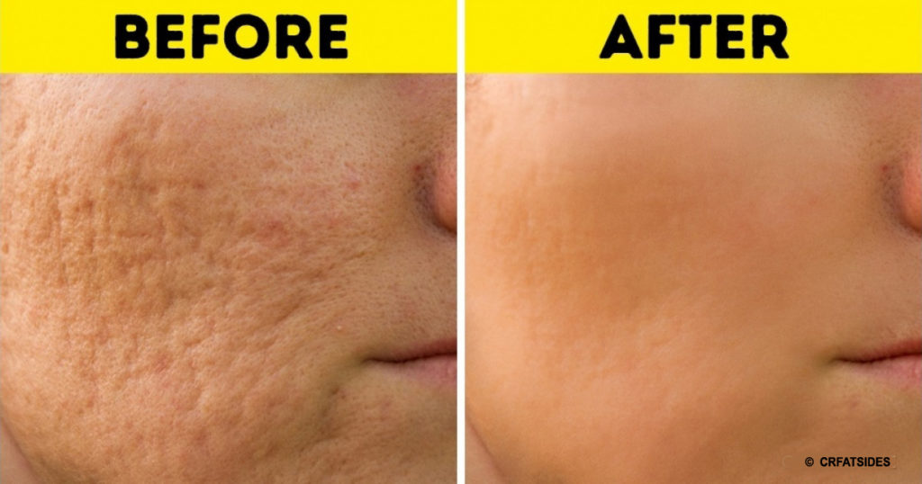 how to remove scars of acne home remedies