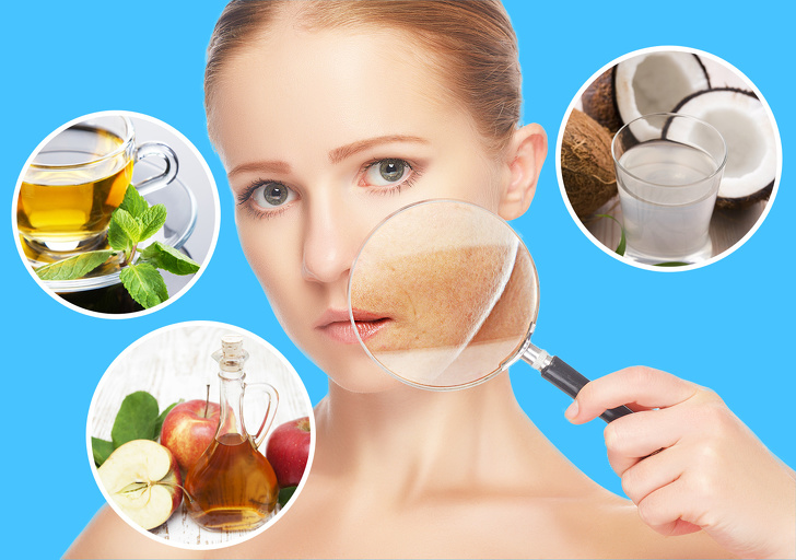 natural ways to get rid of sunspots on face