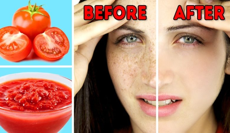 16 Natural Remedies to Get Rid of Sunspots