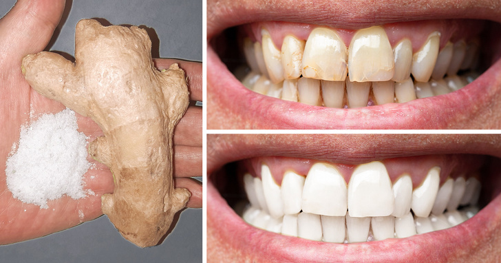 8 Easiest Way To Make Your Teeth Whiter At Home