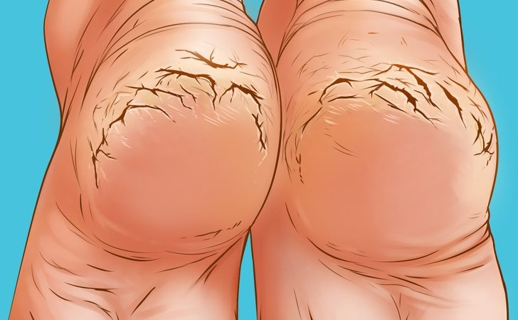 Cracked Heels Causes And How to Fix Them Naturally