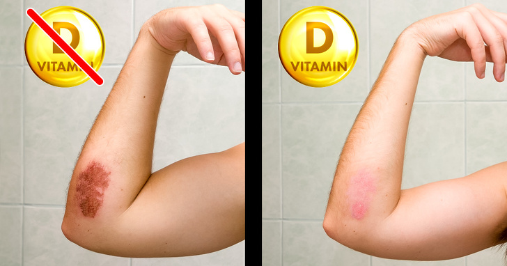 8 Signs That Your Body Desperately Needs More Vitamin D
