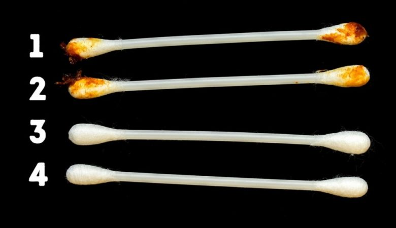 8 Things Your Earwax Says About Your Health
