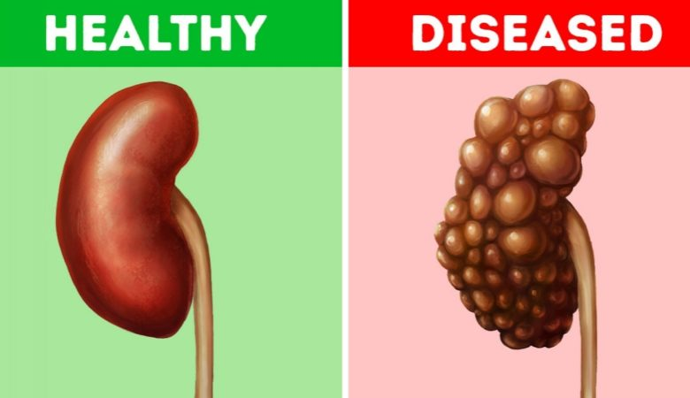 8 Common Habits That Can Damage Your Kidneys