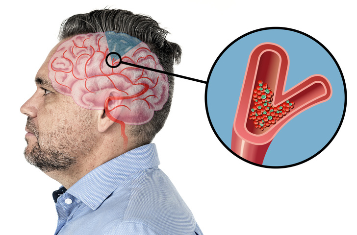 6 Warning Signs That Show a Stroke Is Coming, And You Don't Know
