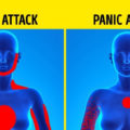 How To Distinguish Between a Heart Attack and a Panic Attack