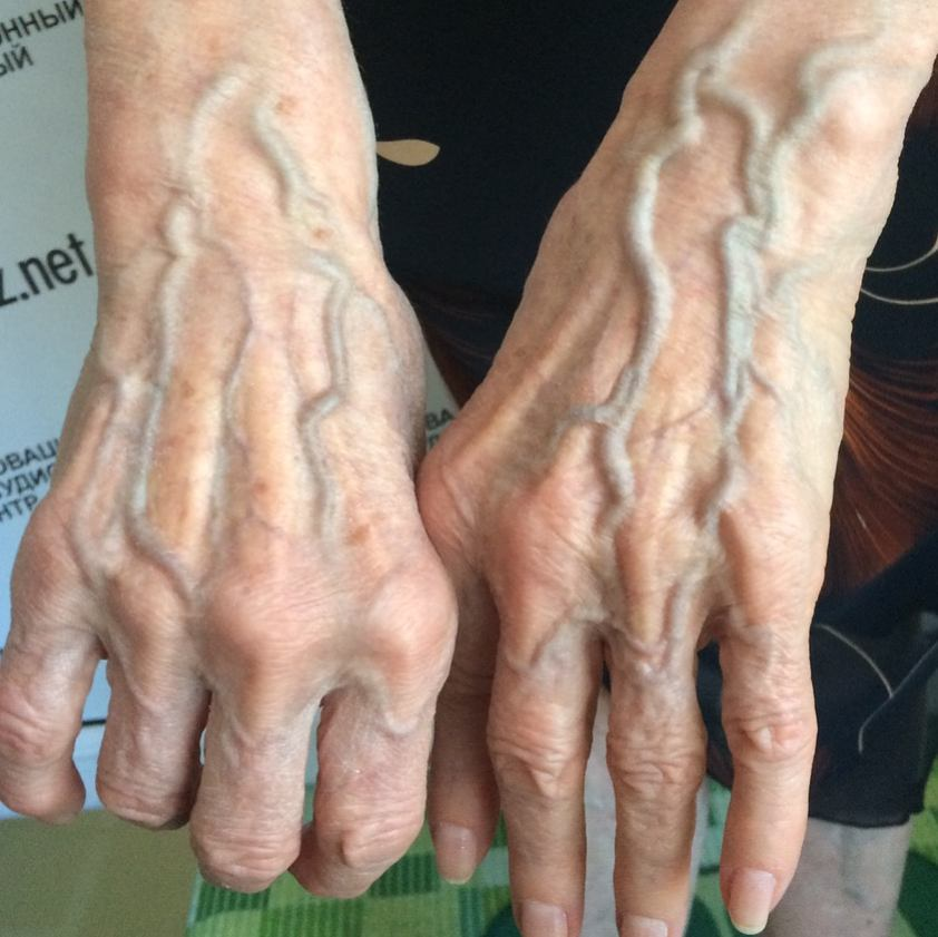 Why Do Some People's Veins Appear Through Their Skin?