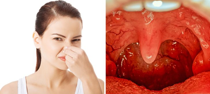 9 Surprising Daily Do's and Don'ts to Avoid Bad Breath