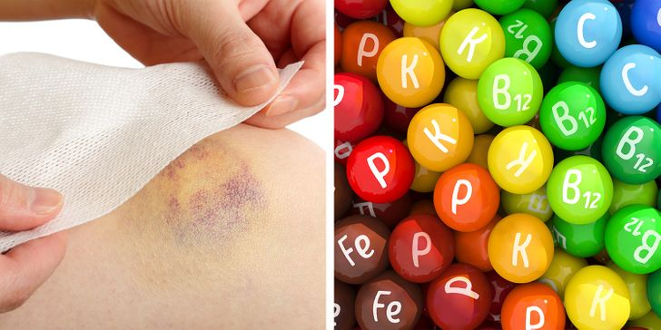 7 Health Problems That Can Be the Reason For Unexplainable Bruises on Your Body