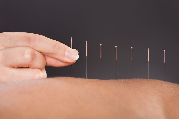 6 Key Tips To Treat Sciatic Nerve Pain Effectively