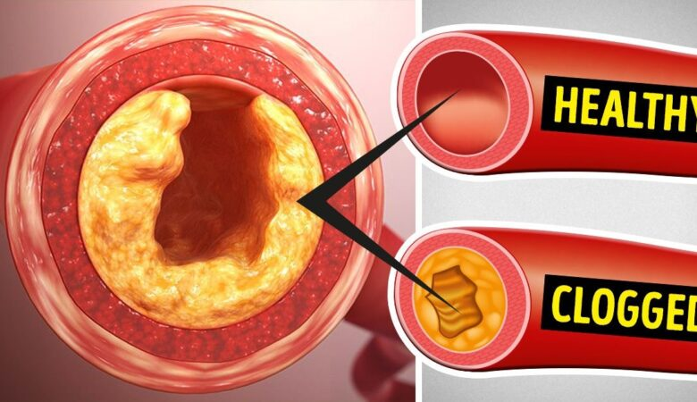 8 Foods to Avoid Like Fire If You Want to Unclog Your Arteries
