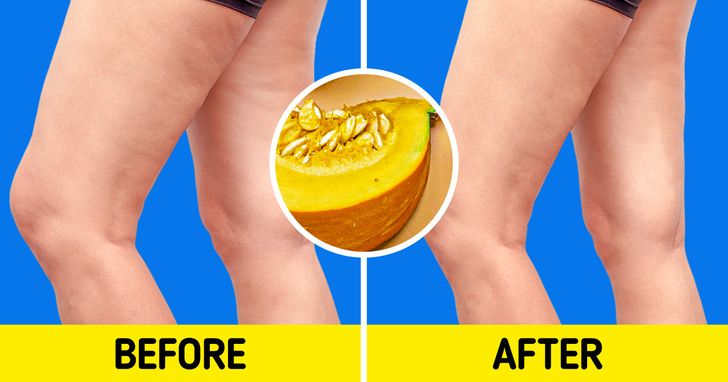 7 Foods That May Help You Fight Cellulite