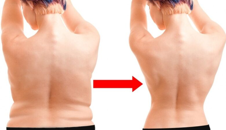 Just One Exercise to Remove Fat and Improve Posture in No Time