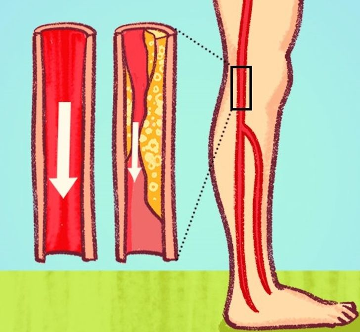 6 Dangerous Signs of Blocked Arteries We Often Ignore