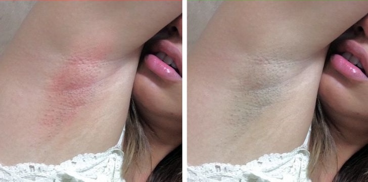 6 Not So Known Armpit Signals That Can Indicate Health Issues