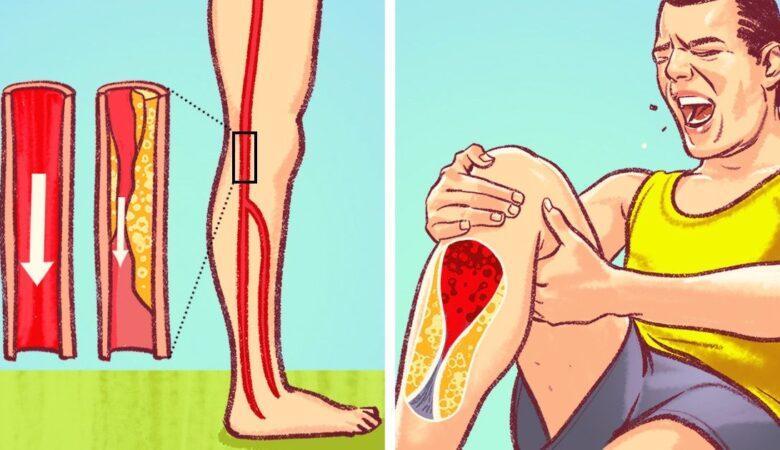 6 Dangerous Signs of Blocked Arteries We Often Ignore