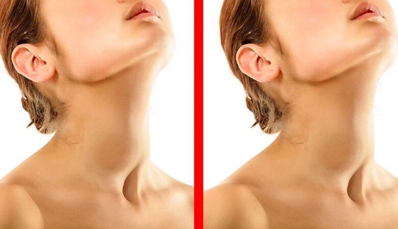 6 Symptoms of Thyroid Disease You Mustn't Ignore