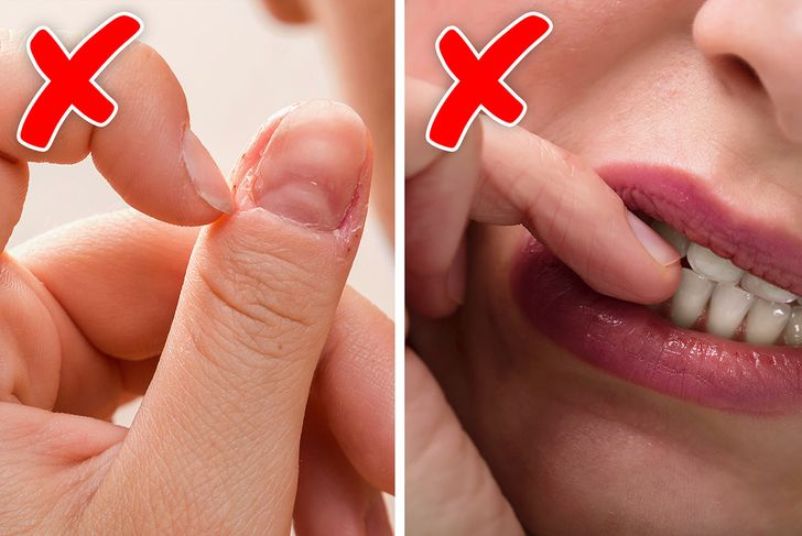 5 Things Your Nail Biting Habit Can Reveal About You