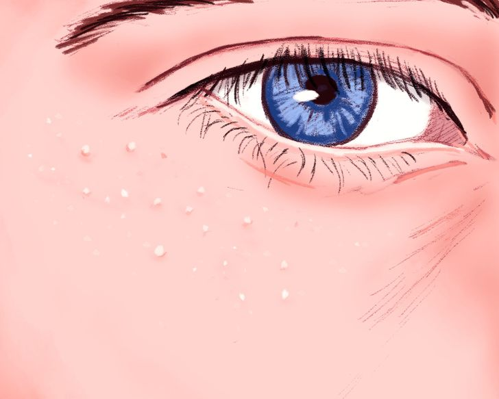 What Are Those White Pimples That Appear Around Your Eyes