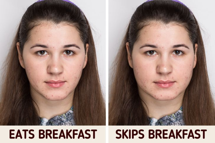 What Happens to Your Body If You Skip Breakfast Every Day