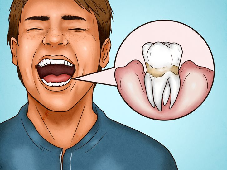 4 Signs You're Brushing Your Teeth Too Hard, and 4 Ways You Can Fix It