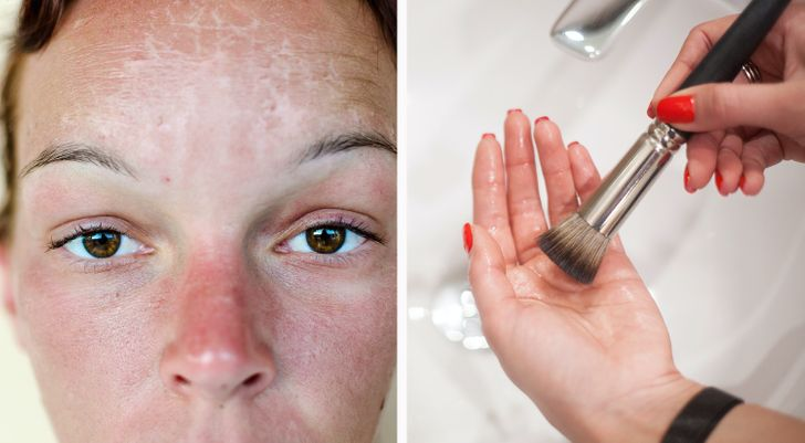 6 Things You Shouldn't Do After Getting a Sunburn