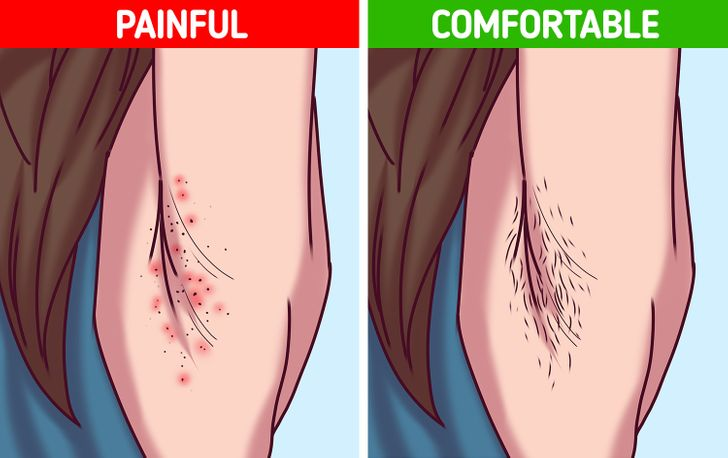 6 Reasons Why Accepting Your Body Hair Can Upgrade Your Life